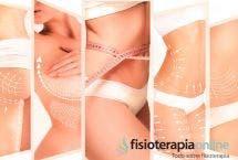Tratamientos de fisioterapia tras una liposucción