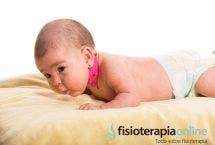 ¿Qué es la tortícolis muscular congénita?
