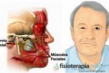 Parálisis facial. Qué es, causas, síntomas y tratamiento en fisioterapia
