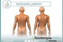 Escoliosis. ¿Qué es? Tipos, causas y tratamiento