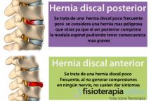Las hernias discales pueden ser muy diferentes, aprende cómo son algunas de ellas