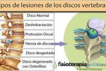 Las vértebras cervicales suelen sufrir lesiones, una de ellas es la hernia discal cervical descubre como y porque ocurre