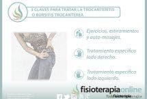3 claves para tratar la trocanteritis o bursitis trocantérea