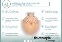 Todo lo que necesitas para conocer qué es la cervicobraquialgia, 14 interesantes vídeos sobre el tema