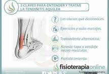 5 claves para entender y tratar la tendinitis aquilea