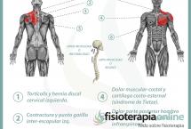 Relación entre el estómago y el dolor de espalda