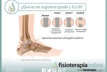 ¿Sabes qué es un esguince de tobillo y cuales son sus grados, según la importancia de la lesión?