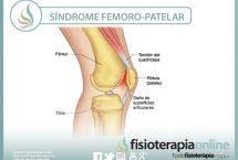 Tratamiento, características, síntomas, causas y mucho mas, sobre el síndrome femoro-patelar