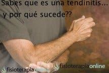 Tendinitis, tendinosis, tendinopatía, muchos nombres y una explicación