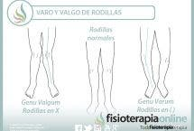 Rodillas varas o valgas. Dos alteraciones posturales y dos ejercicios para trabajarlas