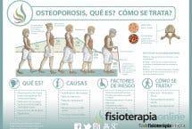 Descubre qué es y cómo se trata la osteoporosis u osteopenia