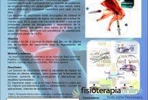 El uso del plasma rico en factores de crecimiento en la regeneración del cartílago