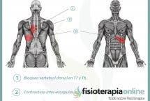 Relación entre el páncreas y el dolor de espalda.