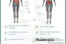 Relación entre el útero y el dolor de espalda