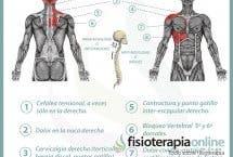 Relación entre el hígado y el dolor de espalda