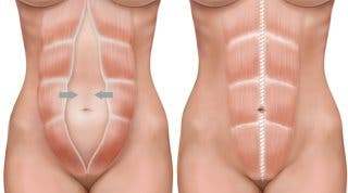 Diástasis de los rectos abdominales. Qué es y consejos para su cuidado