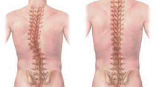 Escoliosis y yoga: Síntomas. Diagnóstico. ¿Cómo ayuda la práctica del Yoga? Recomendaciones prácticas.(1ra parte)