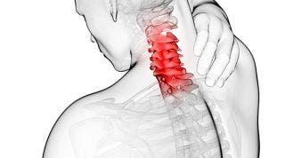 Artrosis cervical o Cervicoartrosis. Causas, síntomas y tratamiento
