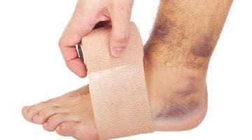 Ventajas del vendaje funcional para el esguince de tobillo