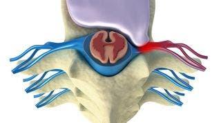 Hernia Discal. Qué es, causas y tipos de lesiones del disco intervertebral