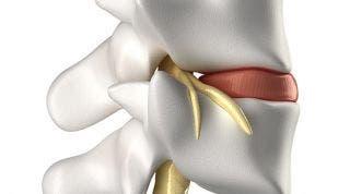 ¿Qué es el síndrome facetario? Síntomas, diagóstico y tratamiento