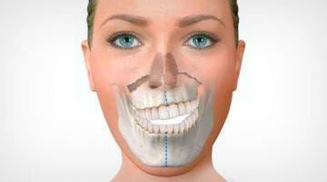 Osteopatía y la mal oclusión