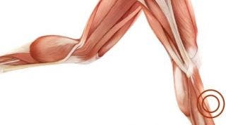 Lesiones en el deporte: Periostitis Tibial