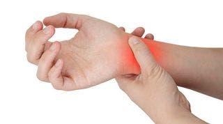 Tratamiento del Síndrome del Túnel Carpiano ¿Cirugía o fisioterapia?