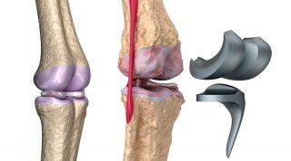 Rehabilitación de una prótesis de rodilla o artroplastia de rodilla. Consejos, ejercicios y fases de tratamiento
