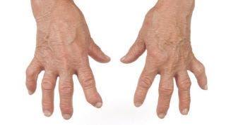 Artritis reumatoide. Qué es, fases y tratamiento médico y de fisioterapia
