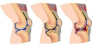 Artrosis o desgaste articular. Qué es, causas, síntomas y tratamiento quirúrgico y de fisioterapia