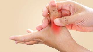 ¿Qué hacer si te diagnostican artrosis del pulgar?