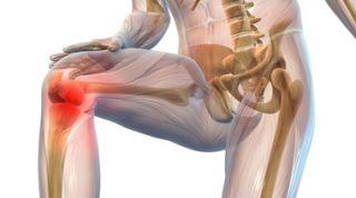 Tratamiento fisioterápico de la gonartrosis o artrosis de rodilla