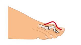 Los dedos en martillo. Sus causas, síntomas y tratamiento
