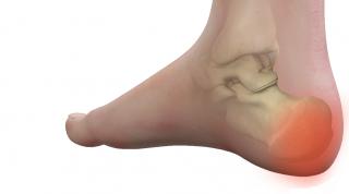Fractura de calcáneo: ¿Cuáles son las complicaciones habituales de las fracturas de calcáneo?