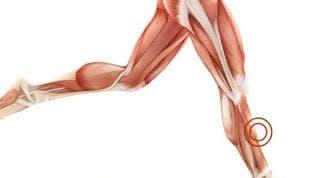 ¿Me he roto el músculo? ¿Será una rotura de fibras, distensión o solo una contractura?