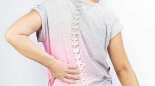 Ejercicios y otras técnicas para aliviar el dolor ocasionado por la escoliosis