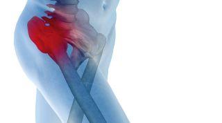 Tratamiento de la luxación congénita de cadera en un niño