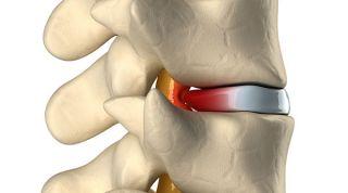 Hernia discal central a nivel L5-S. Causas, síntomas y tratamiento en fisioterapia