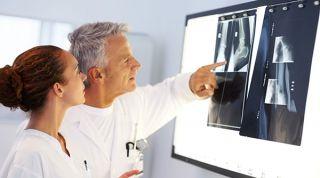 ¿Qué son la osteocondrosis y la osteocondritis?