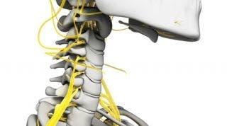 Afectación del plexo braquial