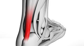 Qué es la tendinitis del tendón de Aquiles y cuales son sus causas síntomas y tratamiento