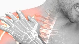 ¿Cómo recuperarse de una fractura de húmero?