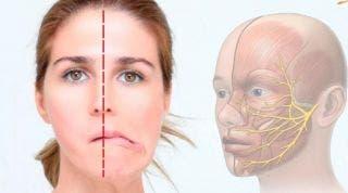 ¿Qué ejercicios puedo hacer si tengo Parálisis Facial?