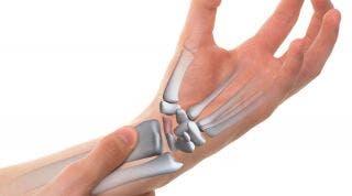 Fractura de escafoides. Causas, síntomas y tratamiento de fisioterapia