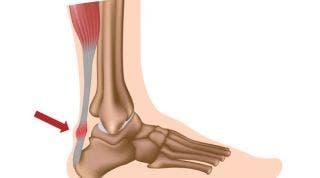 Rotura del tendón de Aquiles. Causas, síntomas y tratamiento