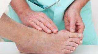 Tratamiento quirúrgico de los dedos en garra: ¿Cómo es la operación de los dedos en garra?