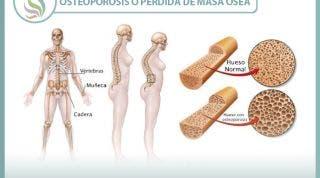 La osteoporosis o pérdida de masa ósea. Un grave problema de los huesos