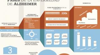 El camino de la enfermedad de Alzheimer, un enfoque desde la fisioterapia