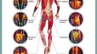 Puntos gatillo de la zona dorsal, los causantes musculares de la dorsalgia